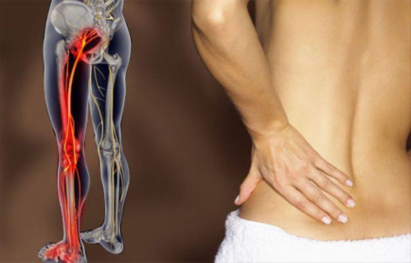 2 простых способа разблокировать седалищный нерв и быстро снять боль!