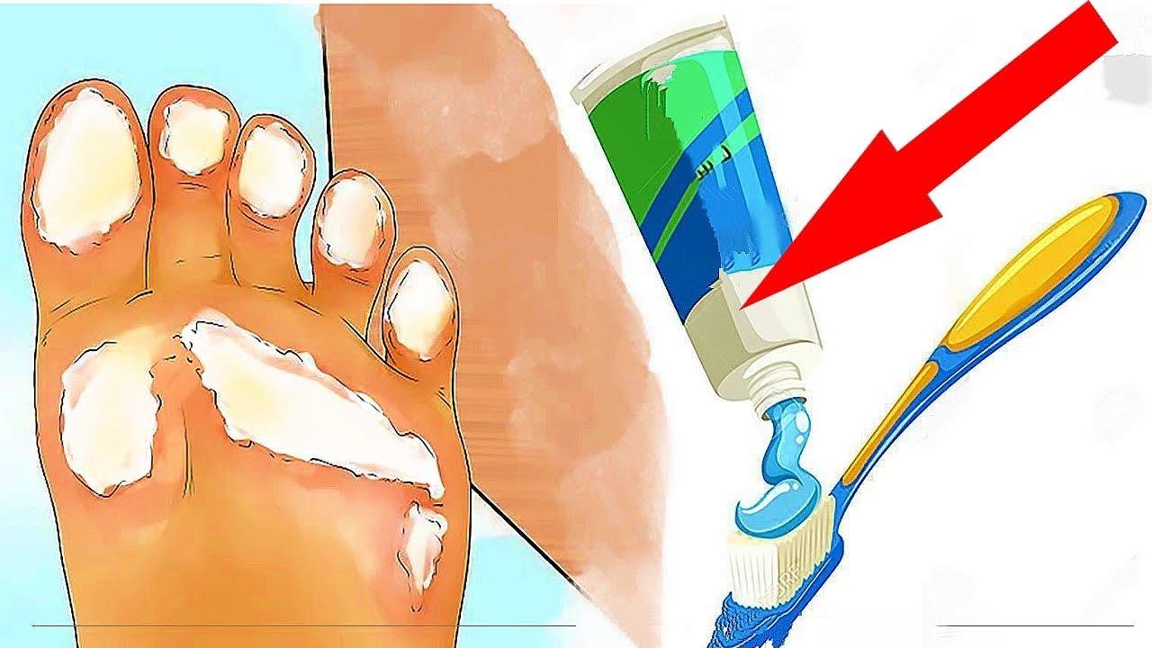 Зубная паста для красивых пяточек: я была удивлена, но они правда стали, как у ребенка!