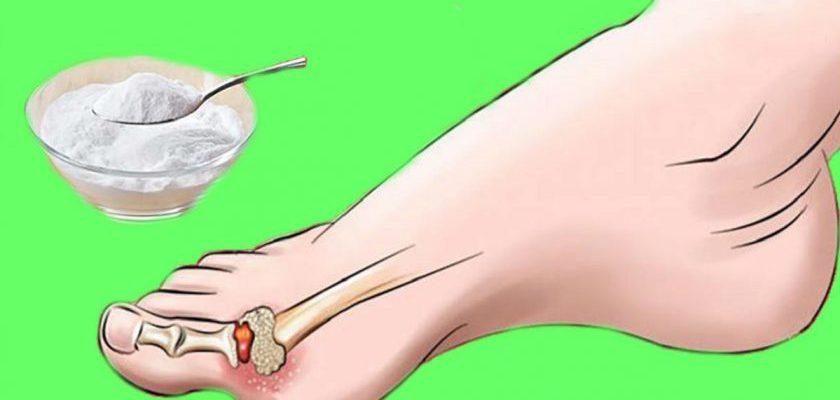 Подагра, стоп! Как всего 1 средство поможет избавиться от боли и внешних признаков.