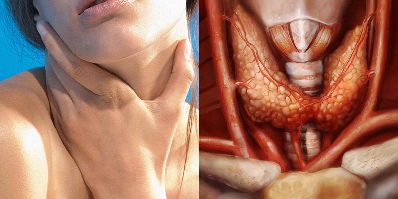 Щитовидка не халтурит и не шалит. Чудо-коктейль для тех, кто уже успел заметить проблему. Свари, наполни стаканчик и не болей.