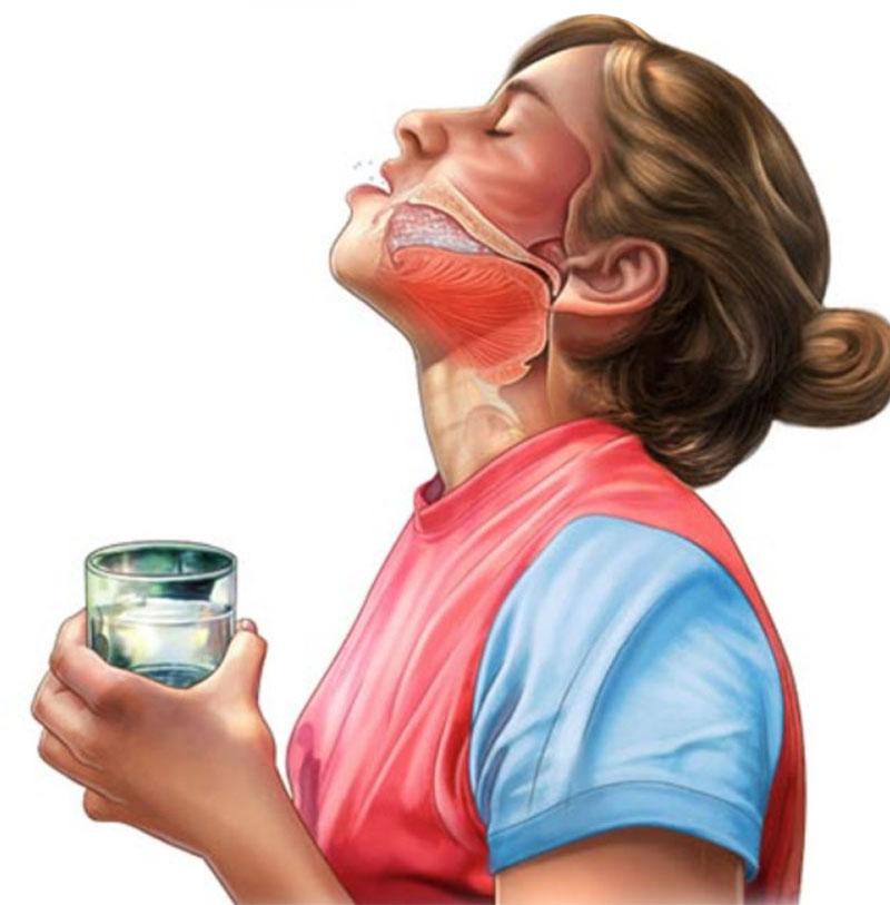 Лечим ангину в домашних условиях без антибиотиков. Натуральное средство уберет боль в горле.