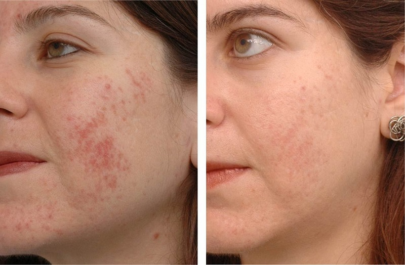 Наношу «Энтеросгель» тостым слоем на лицо и принимаю ложку натощак. Он очищает лицо лучше моего косметолога!