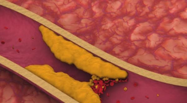 Как нас обманывают все эти годы: холестерин не имеет никакого отношения к атеросклерозу!