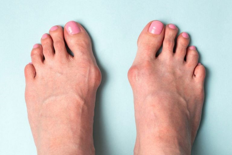 Лавровый лист поможет избавиться от косточек на ногах. Этот способ намного лучше, чем операция!