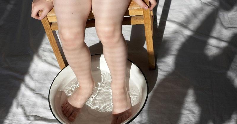 Не давай лимфе застаиваться! Если ноги отекают, важно не допустить губительной ошибки.
