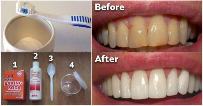 Как избавиться от зубного налета и отбеливать зубы без дорогостоящих процедур. Вам понравится это средство!