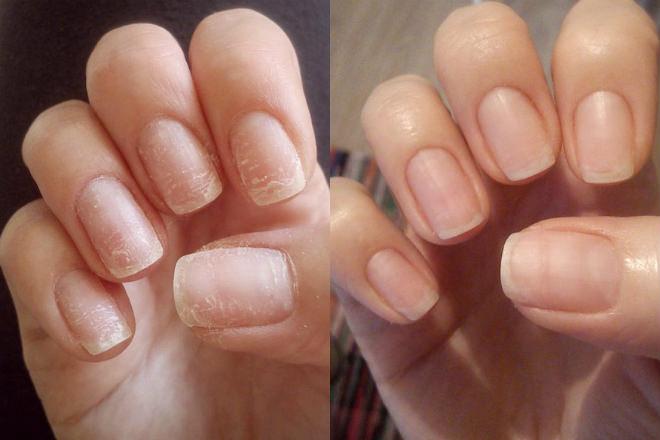 Суперспособ восстановить ногти после наращивания или гель-лака