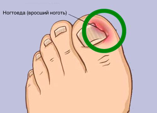 Как правильно решить проблему вросших ногтей и что такое ногтоеда?