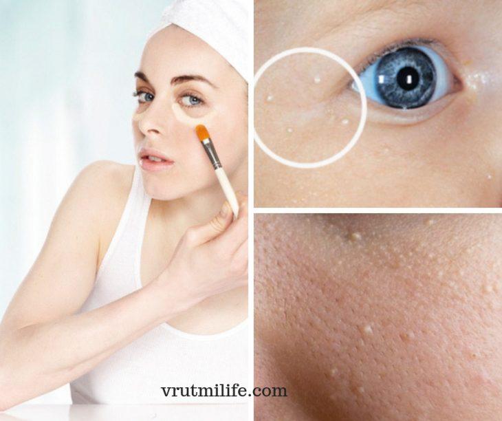 У Вас есть белые точки вокруг глаз? Удалите их с помощью этих 5 натуральных средств.
