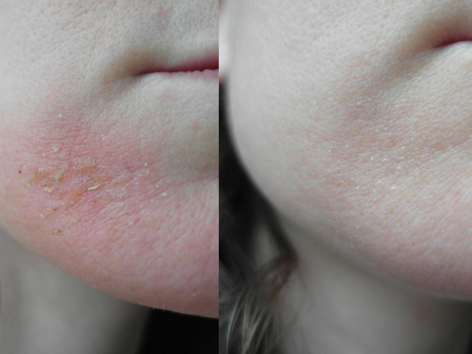 Делаем качественную чистку кожи в домашних условиях. Открываем секреты идеальной кожи.