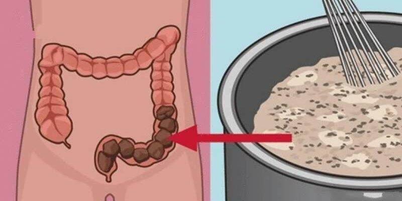 Домашнее очищение кишечника, которое позволит освободить ваш кишечник от токсичных отходов