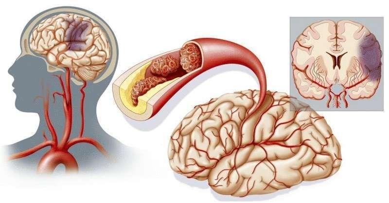 Доказано: этот витамин является новым мощным средством против инсульта